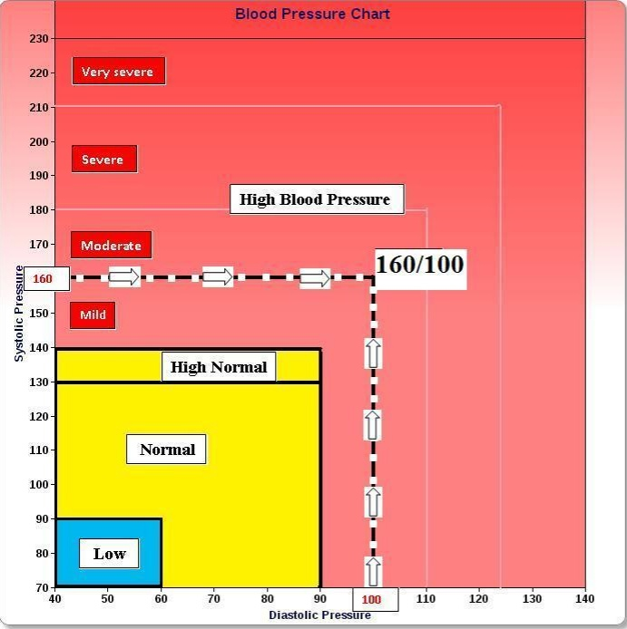 Blood-Pressure-Chart-Example.Jpg