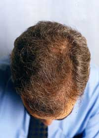 regain hair loss